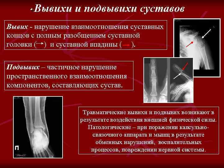 Вывихи и подвывихи суставов Вывих - нарушение взаимоотношения суставных концов с полным разобщением суставной