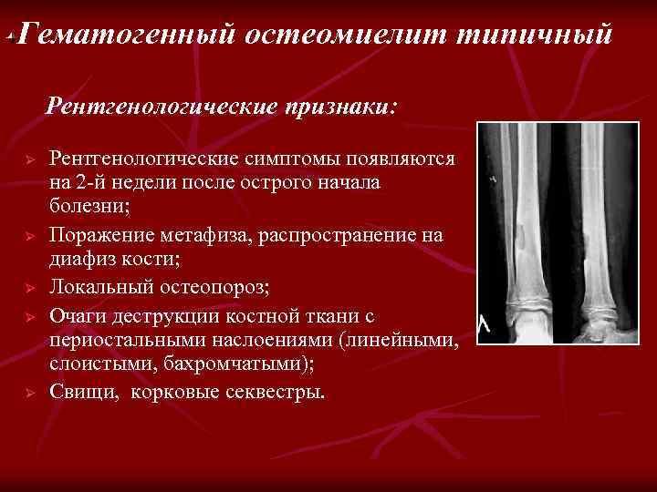 Гематогенный остеомиелит типичный Рентгенологические признаки: Ø Ø Ø Рентгенологические симптомы появляются на 2 -й