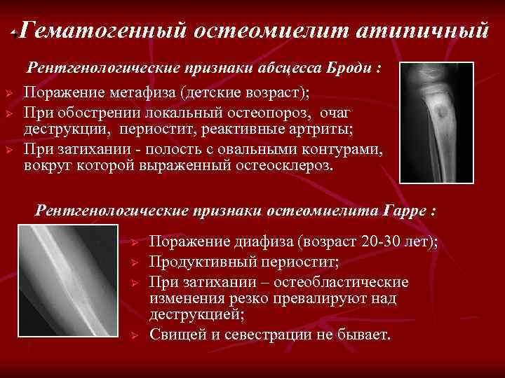 Гематогенный остеомиелит атипичный Ø Ø Ø Рентгенологические признаки абсцесса Броди : Поражение метафиза (детские