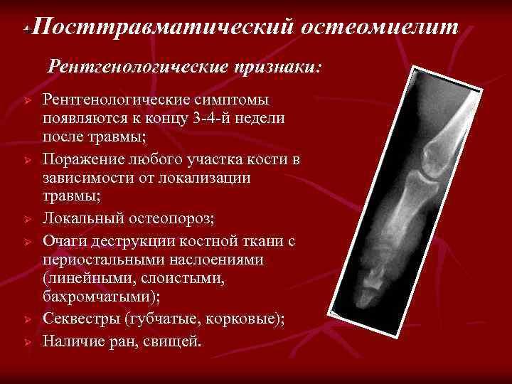 Посттравматический остеомиелит Рентгенологические признаки: Ø Ø Ø Рентгенологические симптомы появляются к концу 3 -4
