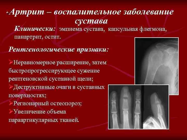 Артрит – воспалительное заболевание сустава Клинически: эмпиема сустава, капсульная флегмона, панартрит, остит. Рентгенологические признаки: