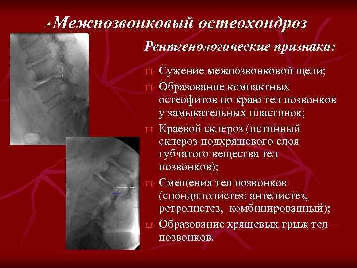 Межпозвонковый остеохондроз Рентгенологические признаки: Ш Ш Ш Сужение межпозвонковой щели; Образование компактных остеофитов по