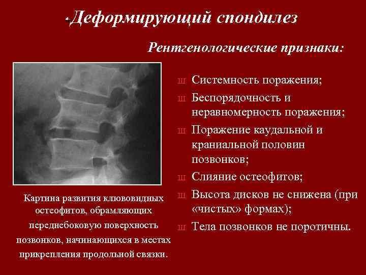 Деформирующий спондилез Рентгенологические признаки: Ш Ш Картина развития клювовидных остеофитов, обрамляющих переднебоковую поверхность позвонков,