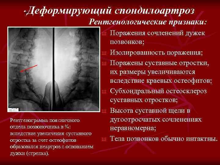 Деформирующий спондилоартроз Рентгенологические признаки: Ш Ш Ш Рентгенограмма поясничного отдела позвоночника в ¾: вследствие