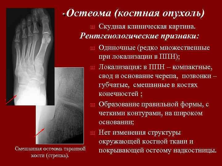 Остеома (костная опухоль) Ш Скудная клиническая картина. Рентгенологические признаки: Ш Ш Смешанная остеома таранной