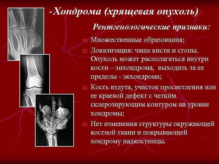 Хондрома (хрящевая опухоль) Рентгенологические признаки: Ш Ш Множественные образования; Локализация: чаще кисти и стопы.
