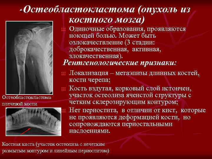 Остеобластокластома (опухоль из костного мозга) Ш Одиночные образования, проявляются ноющей болью. Может быть озлокачествление