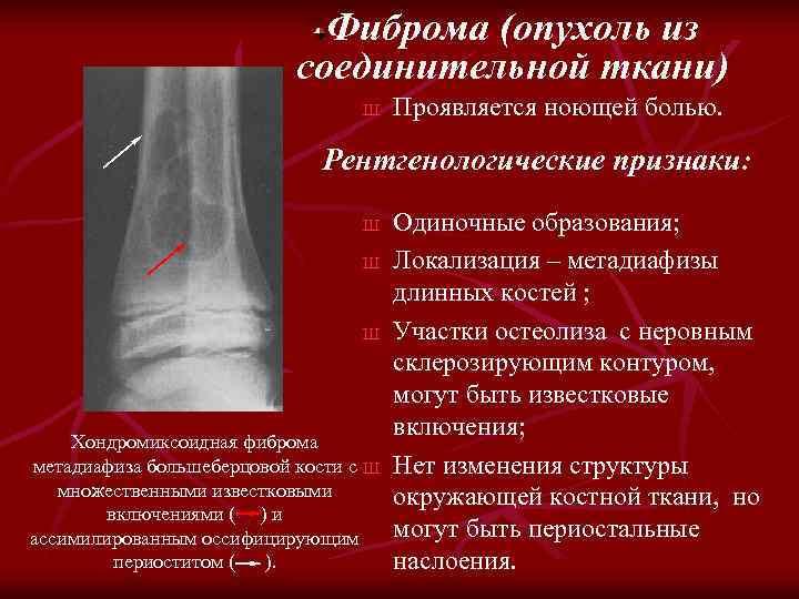 Фиброма (опухоль из соединительной ткани) Ш Проявляется ноющей болью. Рентгенологические признаки: Ш Ш Ш