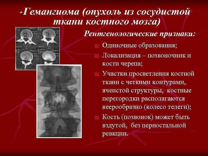 Гемангиома (опухоль из сосудистой ткани костного мозга) Рентгенологические признаки: Ш Ш Одиночные образования; Локализация