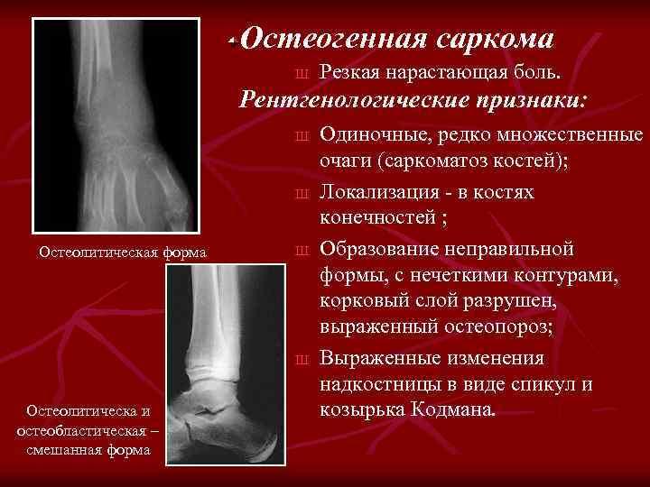 Остеогенная саркома Ш Резкая нарастающая боль. Рентгенологические признаки: Ш Ш Остеолитическая форма Ш Ш