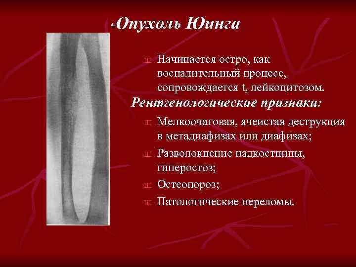 Опухоль Юинга Ш Начинается остро, как воспалительный процесс, сопровождается t, лейкоцитозом. Рентгенологические признаки: Ш