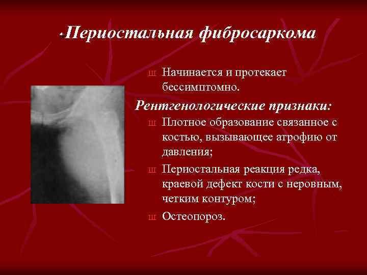 Периостальная фибросаркома Ш Начинается и протекает бессимптомно. Рентгенологические признаки: Ш Ш Ш Плотное образование