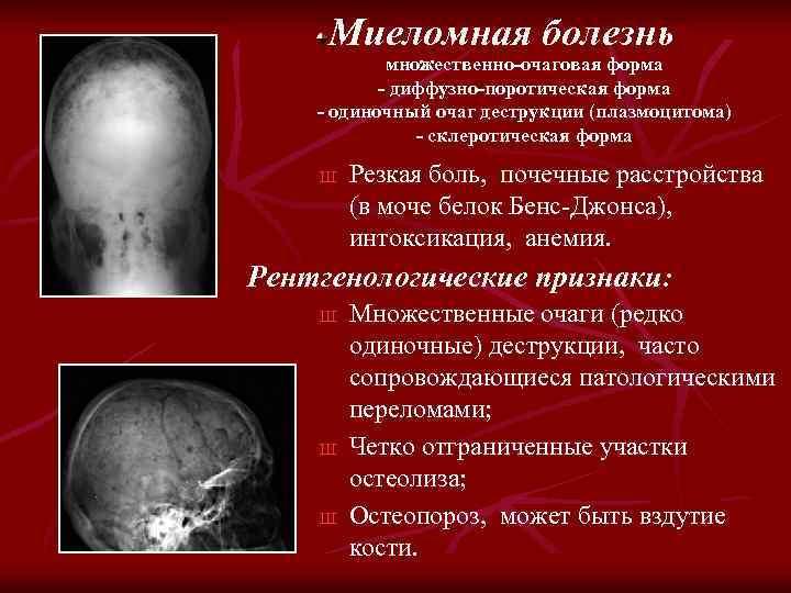 Миеломная болезнь множественно-очаговая форма - диффузно-поротическая форма - одиночный очаг деструкции (плазмоцитома) - склеротическая