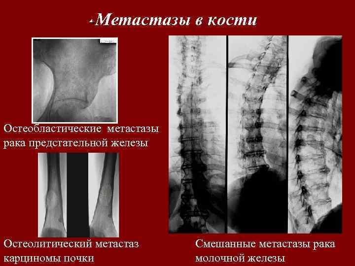 Метастазы в кости Остеобластические метастазы рака предстательной железы Остеолитический метастаз карциномы почки Смешанные метастазы