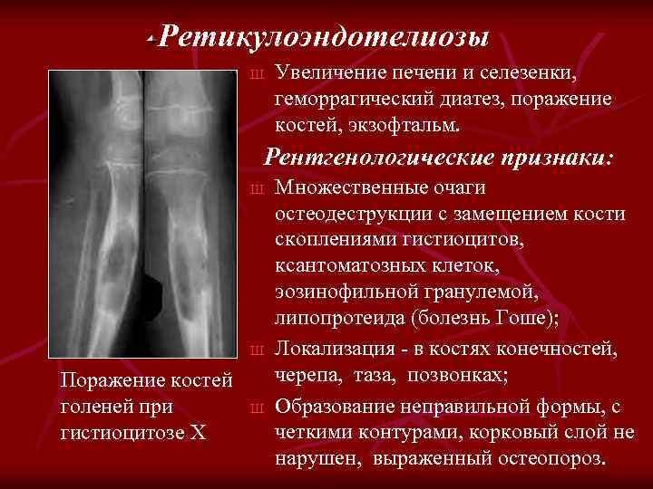 Ретикулоэндотелиозы Ш Увеличение печени и селезенки, геморрагический диатез, поражение костей, экзофтальм. Рентгенологические признаки: Ш