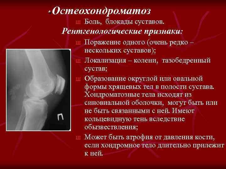 Остеохондроматоз Ш Боль, блокады суставов. Рентгенологические признаки: Ш Ш Поражение одного (очень редко –