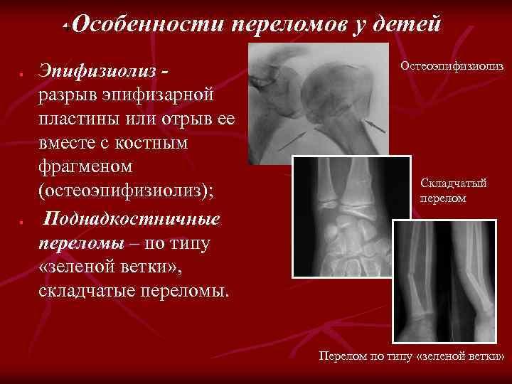 Особенности переломов у детей n n Эпифизиолиз разрыв эпифизарной пластины или отрыв ее вместе