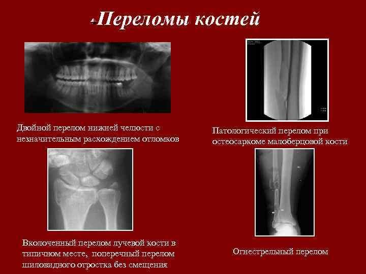 Переломы костей Двойной перелом нижней челюсти с незначительным расхождением отломков Патологический перелом при остеосаркоме