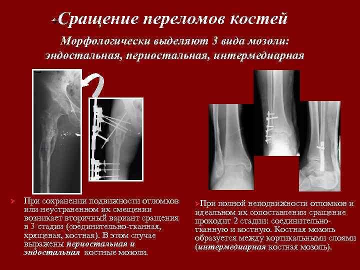 Сращение переломов костей Морфологически выделяют 3 вида мозоли: эндостальная, периостальная, интермедиарная Ø При сохранении