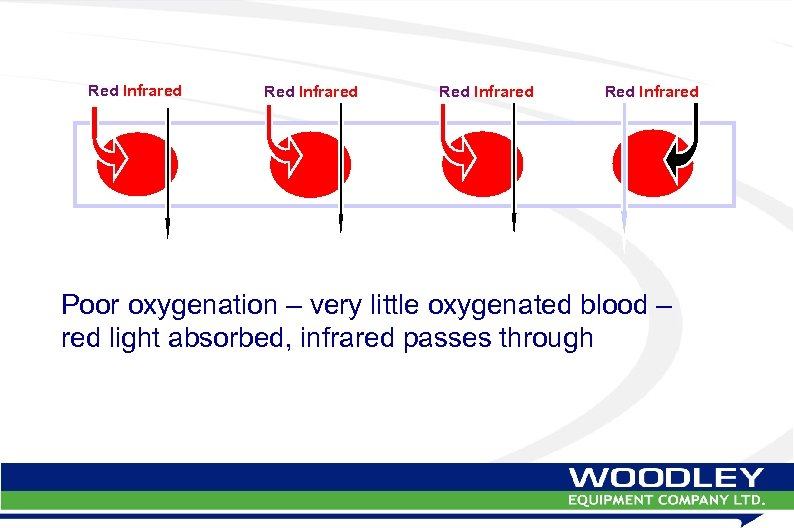 Red Infrared Poor oxygenation – very little oxygenated blood – red light absorbed, infrared