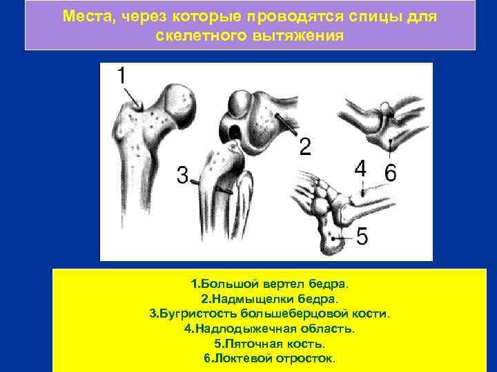 Места, через которые проводятся спицы для скелетного вытяжения 1. Большой вертел бедра. 2. Надмыщелки