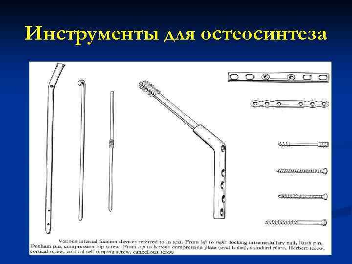 Инструменты для остеосинтеза