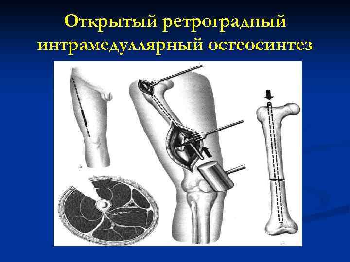 Открытый ретроградный интрамедуллярный остеосинтез