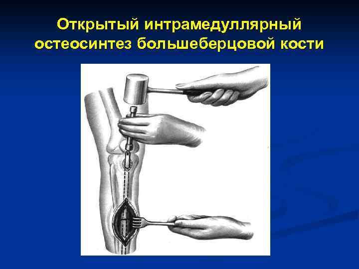 Открытый интрамедуллярный остеосинтез большеберцовой кости