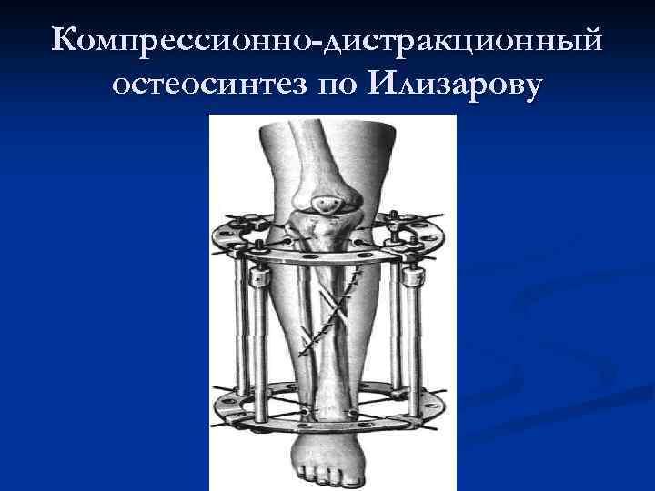 Компрессионно-дистракционный остеосинтез по Илизарову