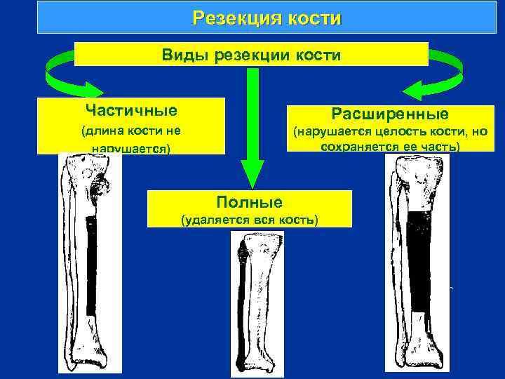 Резекция кости Виды резекции кости Частичные Расширенные (длина кости не нарушается) (нарушается целость кости,