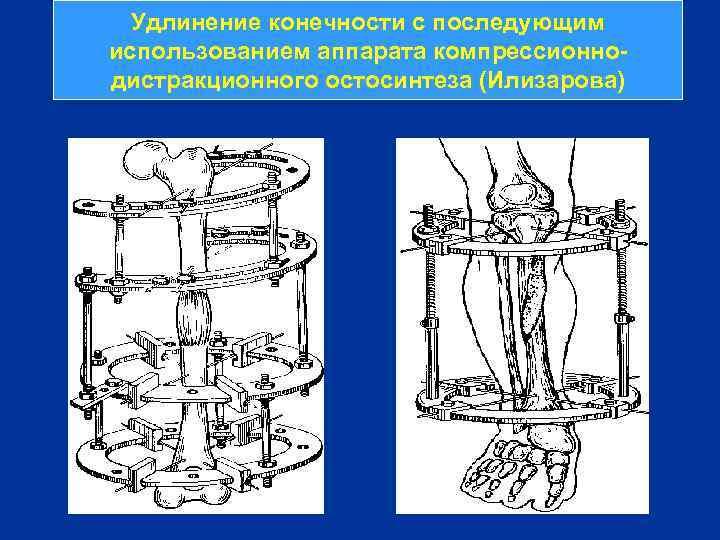 Удлинение конечности с последующим использованием аппарата компрессионнодистракционного остосинтеза (Илизарова)