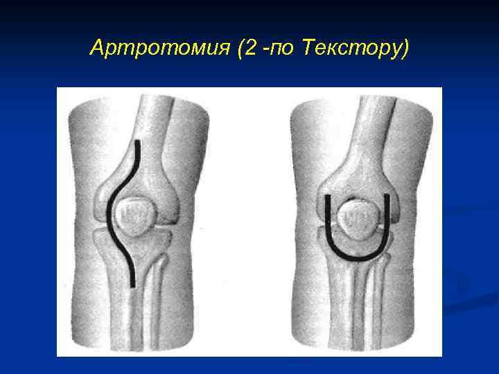 Артротомия (2 -по Текстору)