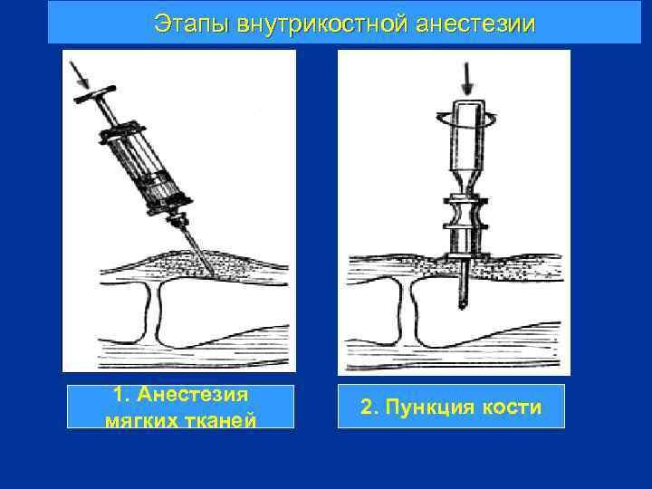 Этапы внутрикостной анестезии 1. Анестезия мягких тканей 2. Пункция кости