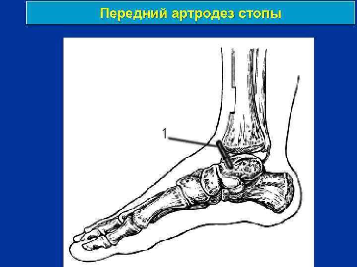 Передний артродез стопы