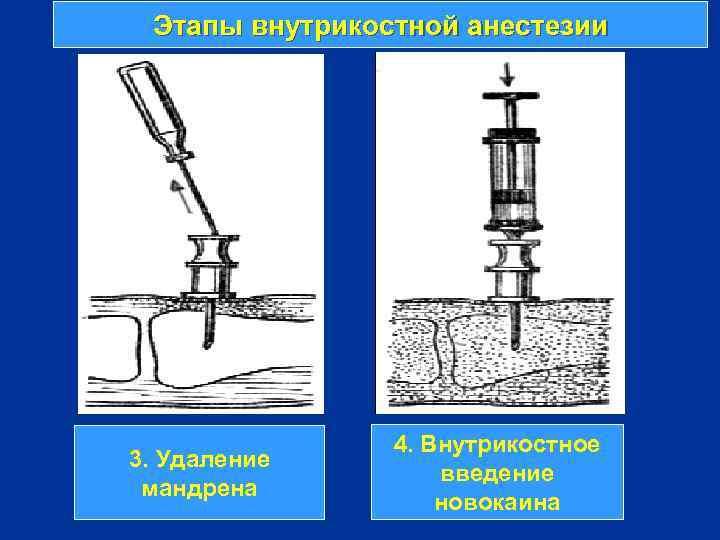 Этапы внутрикостной анестезии 3. Удаление мандрена 4. Внутрикостное введение новокаина