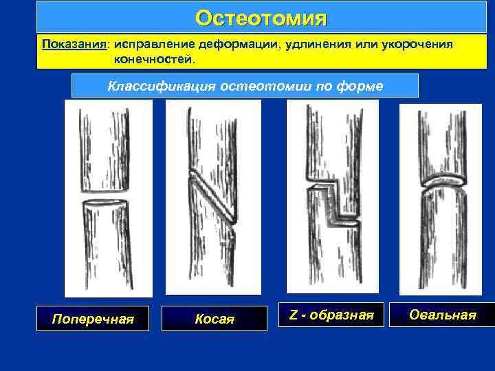 Остеотомия Показания: исправление деформации, удлинения или укорочения конечностей. Классификация остеотомии по форме г Поперечная