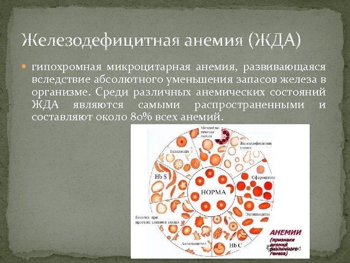 Железодефицитная анемия (ЖДА) гипохромная микроцитарная анемия, развивающаяся вследствие абсолютного уменьшения запасов железа в организме.
