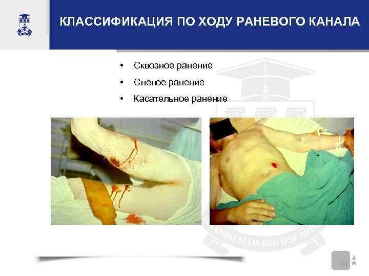 КЛАССИФИКАЦИЯ ПО ХОДУ РАНЕВОГО КАНАЛА • Сквозное ранение • Слепое ранение • Касательное ранение