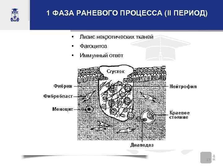 1 ФАЗА РАНЕВОГО ПРОЦЕССА (II ПЕРИОД) • Лизис некротических тканей • Фагоцитоз • Иммунный