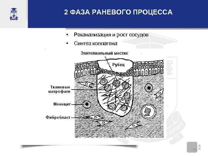 2 ФАЗА РАНЕВОГО ПРОЦЕССА • Реканализация и рост сосудов • Синтез коллагена 18