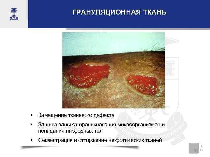 ГРАНУЛЯЦИОННАЯ ТКАНЬ • Замещение тканевого дефекта • Защита раны от проникновения микроорганизмов и попадания