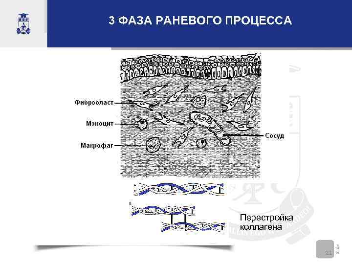 3 ФАЗА РАНЕВОГО ПРОЦЕССА Перестройка коллагена 21