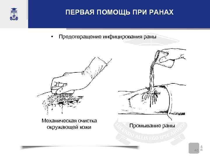 ПЕРВАЯ ПОМОЩЬ ПРИ РАНАХ • Предотвращение инфицирования раны Механическая очистка окружающей кожи Промывание раны