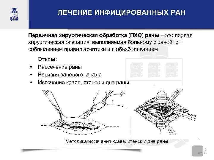 ЛЕЧЕНИЕ ИНФИЦИРОВАННЫХ РАН Первичная хирургическая обработка (ПХО) раны – это первая хирургическая операция, выполняемая