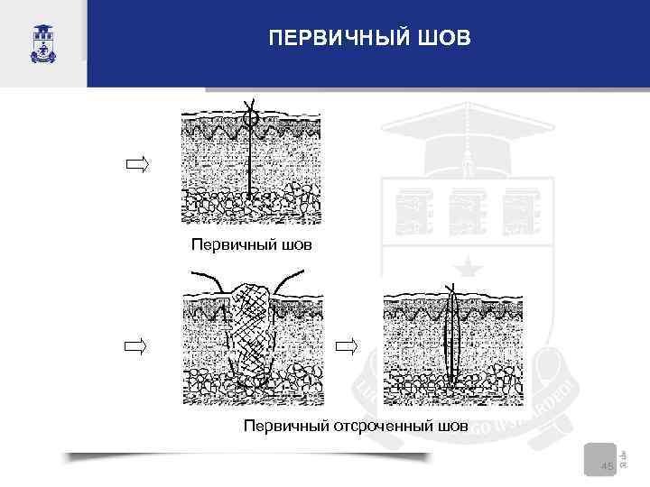 ПЕРВИЧНЫЙ ШОВ Первичный шов Первичный отсроченный шов 45