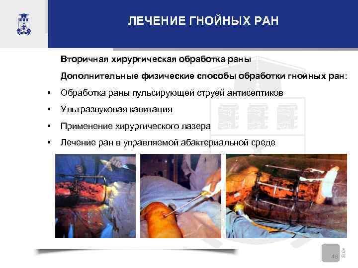 ЛЕЧЕНИЕ ГНОЙНЫХ РАН Вторичная хирургическая обработка раны Дополнительные физические способы обработки гнойных ран: •
