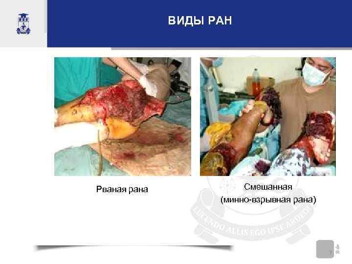 ВИДЫ РАН Рваная рана Смешанная (минно-взрывная рана) 7