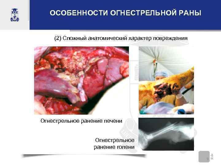 ОСОБЕННОСТИ ОГНЕСТРЕЛЬНОЙ РАНЫ (2) Сложный анатомический характер повреждения Огнестрельное ранение печени Огнестрельное ранение голени