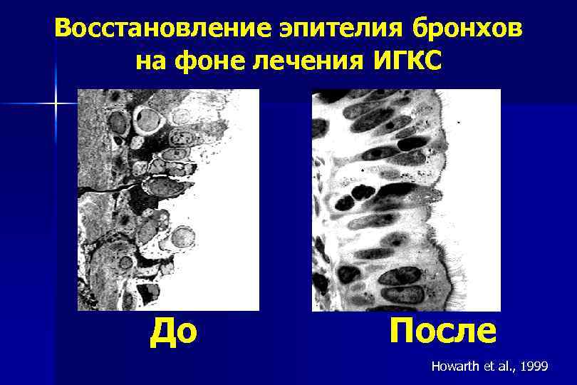 Восстановление эпителия бронхов на фоне лечения ИГКС До После Howarth et al. , 1999
