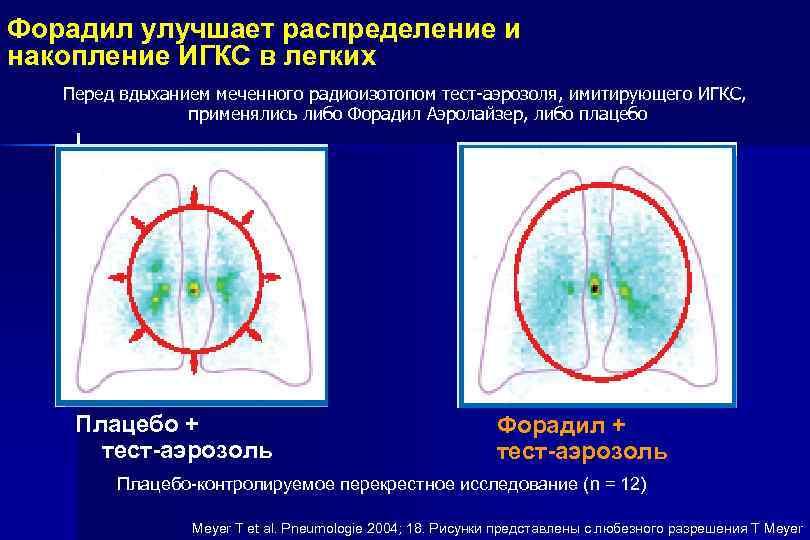 Форадил улучшает распределение и накопление ИГКС в легких Перед вдыханием меченного радиоизотопом тест-аэрозоля, имитирующего